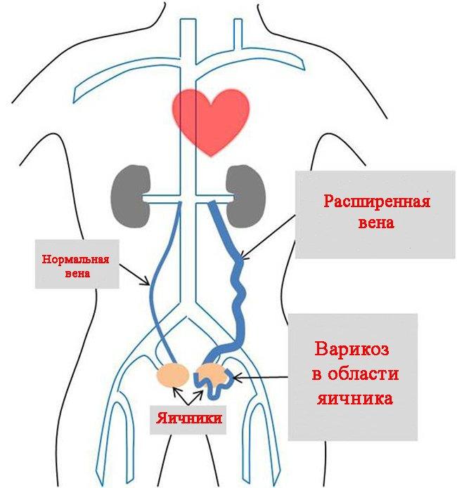 Симптомы и способы лечения варикозного расширения вен
