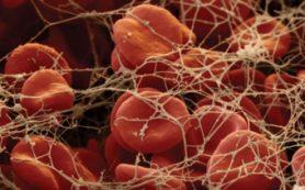 Тромбоцитопатия: причины развития патологии