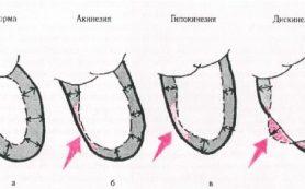 Акинезия миокарда