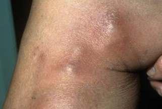 Как избавиться от варикоза